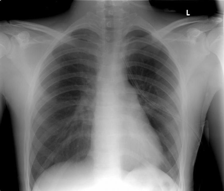 Tràn dịch màng phổi là bệnh phổ biến, thường gặp.