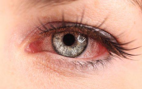Tìm hiểu về viêm mống mắt và cách phòng bệnh